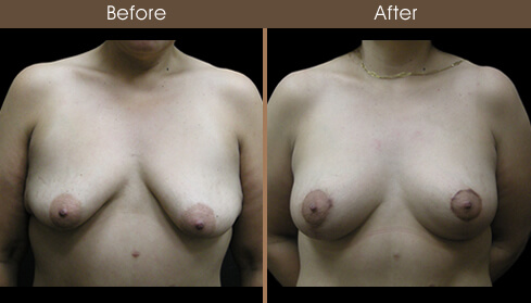 Post Bariatric Surgery Before And After