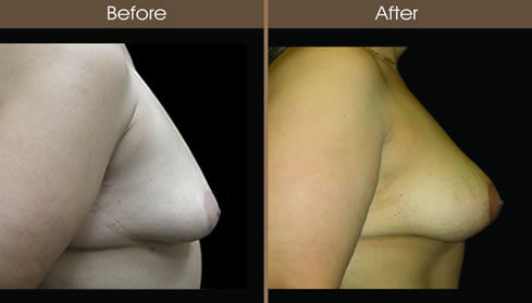 Post Bariatric Surgery Breast Implant Results