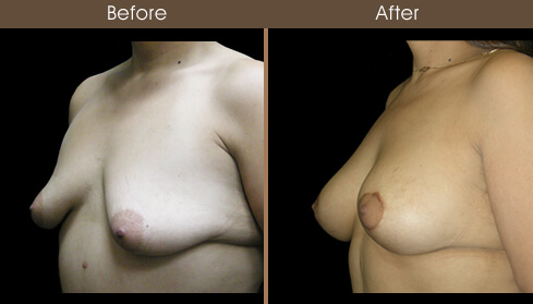 Post Bariatric Surgery Results