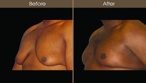 Male Breast Reduction Before And After Left Quarter Image