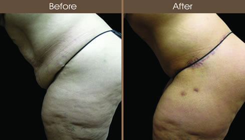 Post Bariatric Surgery Before And After Left Side Image