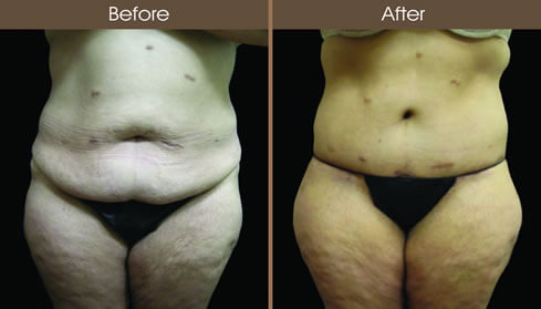 Post Bariatric Surgery Before And After Front Image