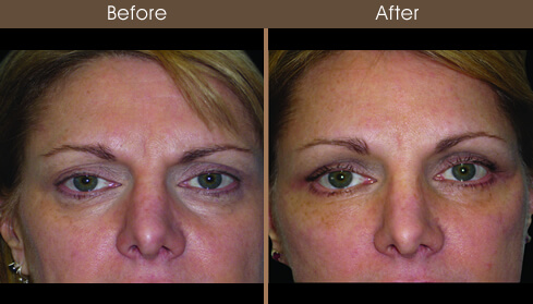 Browlift Before And After