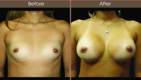 Breast Augmentation Surgery Before And After Front Image