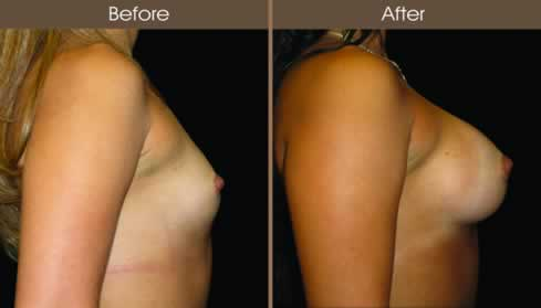 Breast Augmentation Surgery Before And After Right Side Image