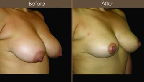 Breast Reduction Surgery Before And After Right Quarter Image