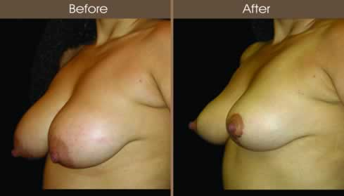 Breast Reduction Surgery Before And After Left Quarter Image