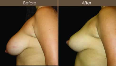 Breast Reduction Surgery Before And After Left Side Image