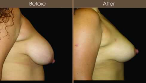 Breast Reduction Surgery Before And After Right Side Image