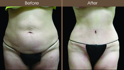 Abdominoplasty Results