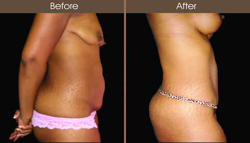 Tummy Tuck Before And After Right Side Image