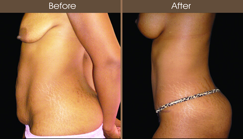 Tummy Tuck Before And After Left Side Image