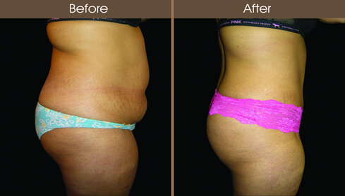 Abdominoplasty Before And After Right Side Image