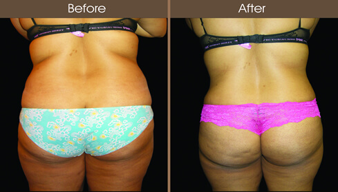 Abdominoplasty Before And After Back Image