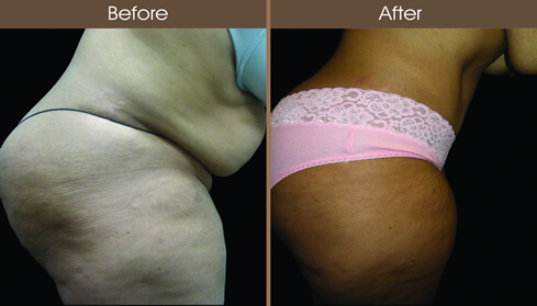 Abdominoplasty Surgery Before And After Right Side Image