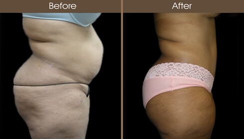 Abdominoplasty Surgery Before And After Right Side View