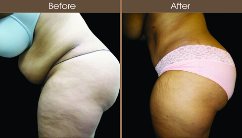 Abdominoplasty Surgery Before And After Left Side Image