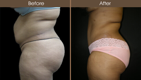 Abdominoplasty Surgery Before And After Left Side View