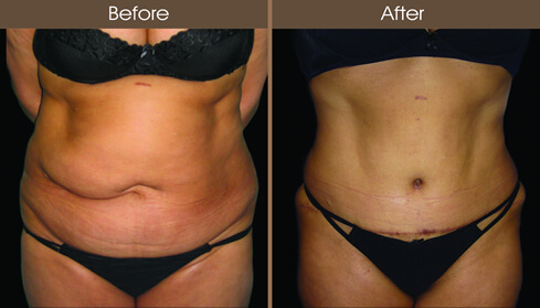 Before And After Tummy Tuck Surgery In NYC