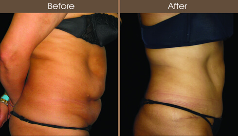 Before And After Tummy Tuck In New York