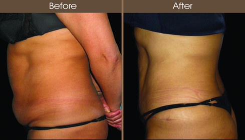Tummy Tuck Surgery Before And After Left Side Image