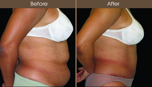 Before And After Abdominoplasty In New York