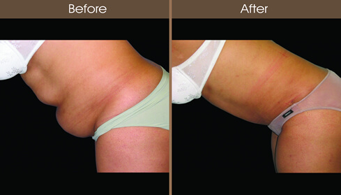 New York Tummy Tuck Before And After