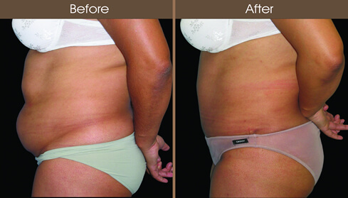 Before And After Abdominoplasty In NYC