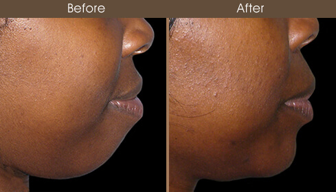 Chin Augmentation Results
