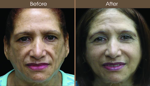 Cosmetic Injectables Before And After Front View