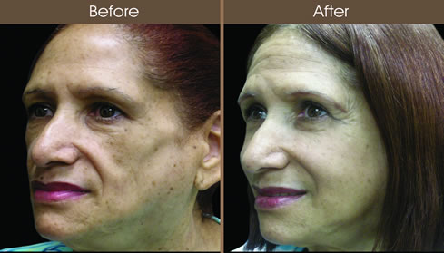 Cosmetic Injectables Before And After Left Quarter View