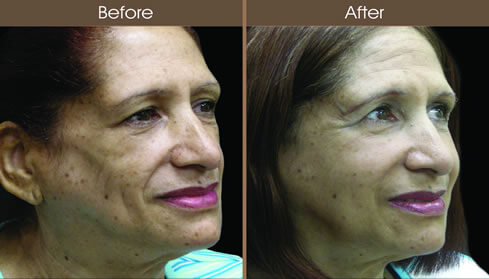 Cosmetic Injectables Before And After Right Quarter View