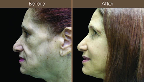 Cosmetic Injectables Before And After Left Side View