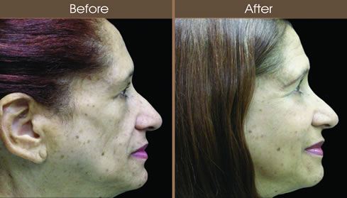 Cosmetic Injectables Before And After Right Side View