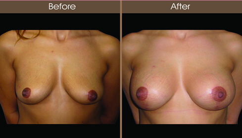 Breast Implant Before And After Front Image