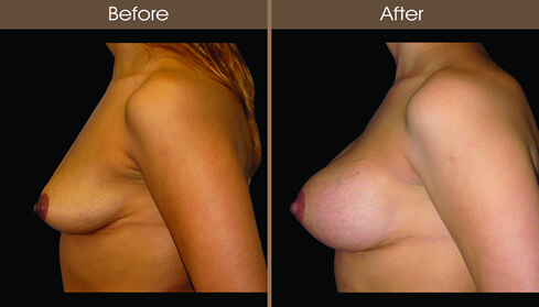 Breast Implant Before And After Left Side Image