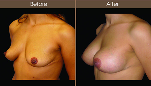 Breast Implant Before And After Left Quarter Image