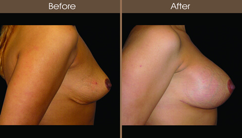 Breast Implant Before And After Right Side Image