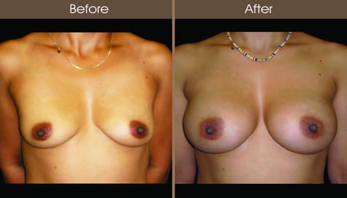 Breast Augmentation Before And After Front Image