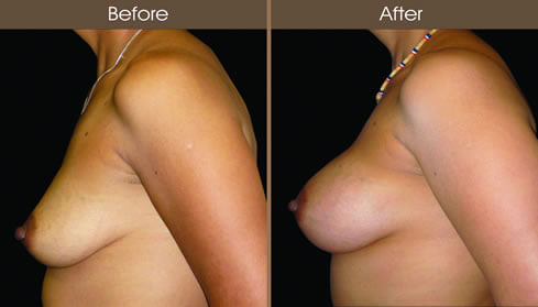 Breast Augmentation Before And After Left Side Image