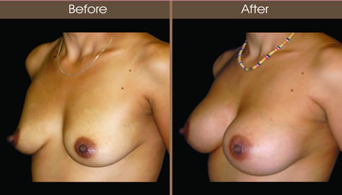Breast Augmentation Before And After Left Quarter Image