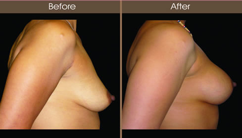 Breast Augmentation Before And After Right Side Image