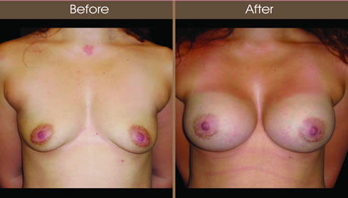 Breast Augmentation Before And After Front View