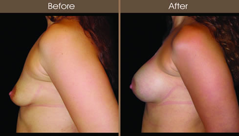 Breast Augmentation Before And After Left Side View