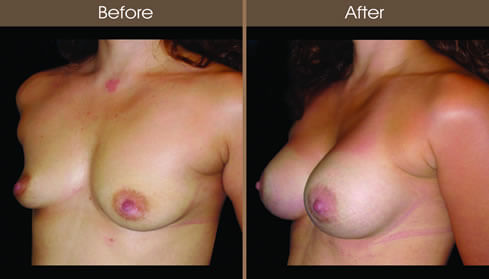 Breast Augmentation Before And After Left Quarter View