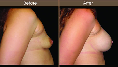 Breast Augmentation Before And After Right Side View