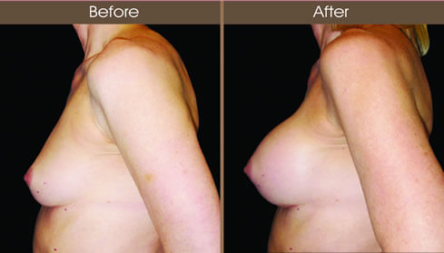 Breast Implant Surgery Results