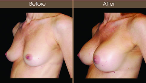 Breast Implant Surgery Before And After
