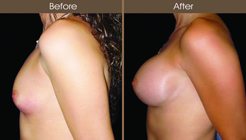 Breast Implant Before And After Left Side View