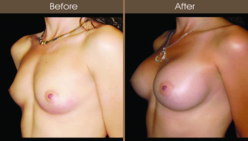 Breast Implant Before And After Left Quarter View